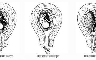 Угроза выкидыша на 3 недели беременности